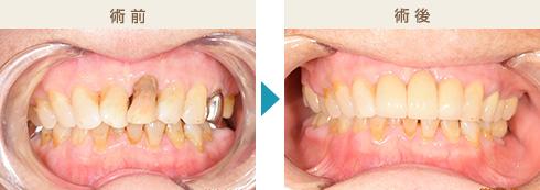 くのう歯科-主な治療症例写真1