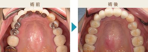 くのう歯科-主な治療症例写真2