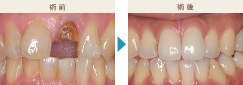 くのう歯科-主な治療症例写真3