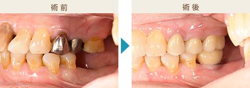 くのう歯科-主な治療症例写真4