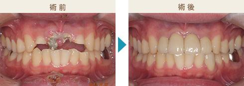 くのう歯科-主な治療症例写真5