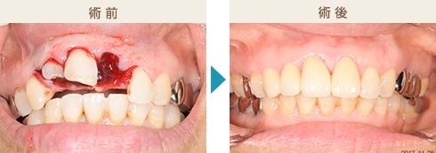 くのう歯科-主な治療症例写真6