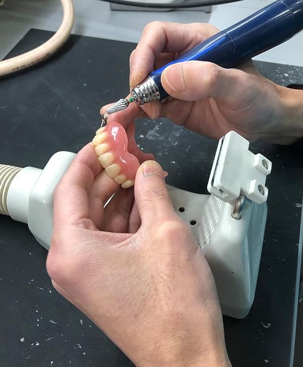 定期検診 入れ歯の場合